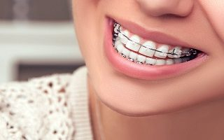 http://arpandental.com/wp-content/uploads/2016/12/teeth-straightening-320x200.jpg