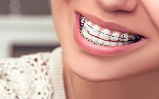 http://arpandental.com/wp-content/uploads/2016/12/teeth-straightening.jpg